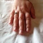 Stiletto nail enhancements - Before